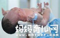 奇葩!胎儿腿都出来了,妈妈才知道肚里有孩子