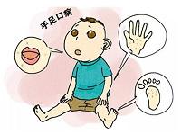 手足口病传染性强 如何预防